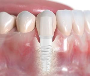 Zircone-implant